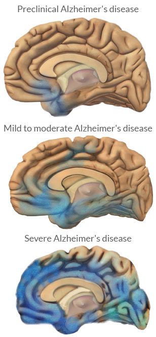 The Stages of Alzheimers